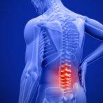 """A """"Crónica"""" dor nas costas. A Lombalgia! Um problema sem solução? Por Carla Nogueira"""